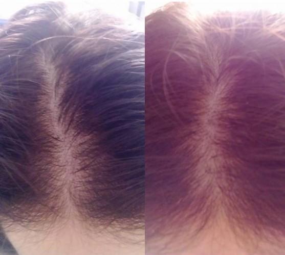 Bal oldalon: a hajam állapota a kezelés előtt Jobb oldalon: a kezelés megkezdése után 2 hónappal
