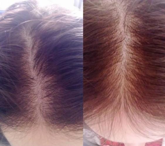 Bal oldalon a kezdeti állapot, jobb oldalon a kezelés megkezdése utáni 4. hónap állapota látható
