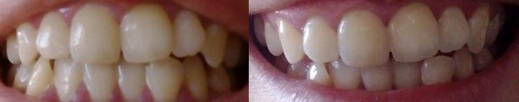 Bal képen: kezelés előtt Jobb képen: 10 matrica után
